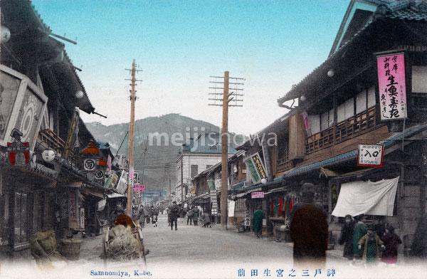 70216-0062 - Sannomiya